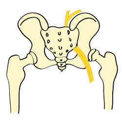 Sciatica (Low Back Pain)